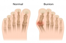 Bunions: Causes, Symptoms and Treatments
