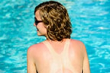 Do Sunburns Really Cause Cancer?