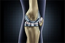 High Success Rates of Total Knee Replacement