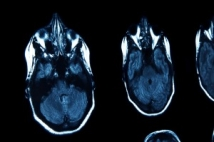 What's the difference between an X-ray, CT scan and MRI?