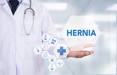 How to Prevent a Hernia